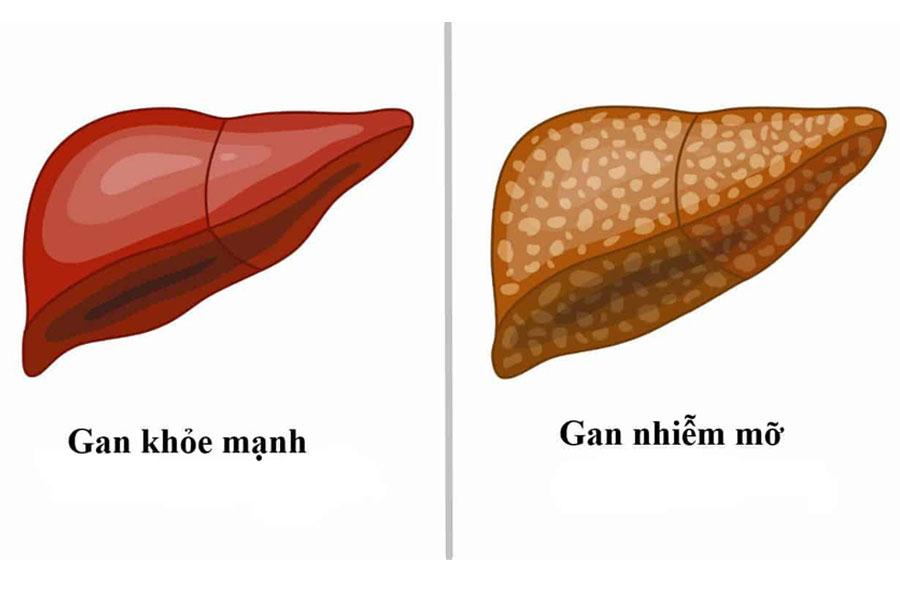 Lá vối cực kì hiệu quả trong việc làm giảm cơn đau cho gan nhiễm mỡ gây ra
